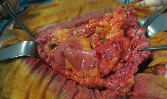Fistula intestinal
