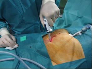 operacion hernia umbilical laparoscopia