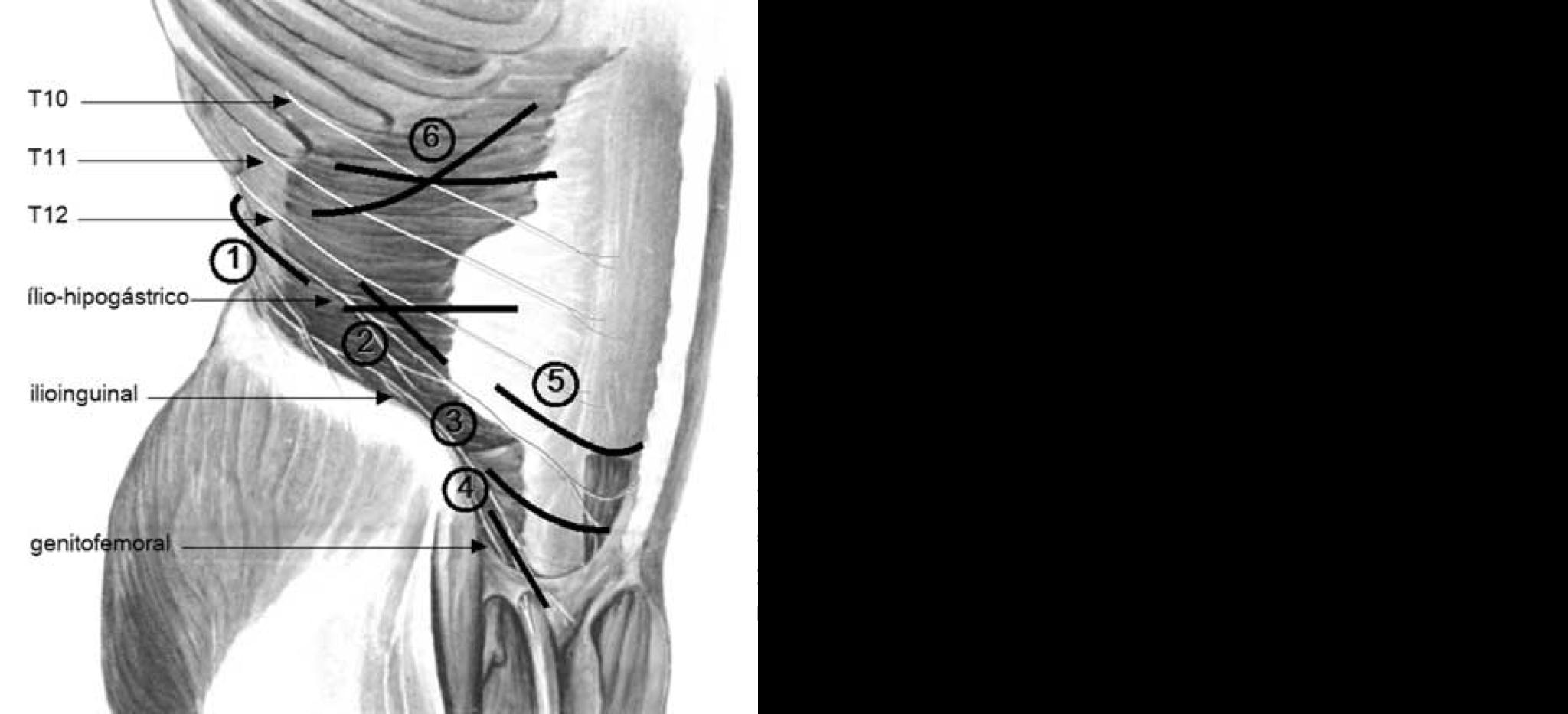 ¿Qué causa el dolor testicular y de la ingle?