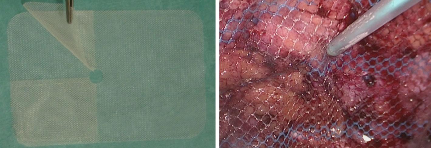 Operacion de colocacion de malla en la vejiga