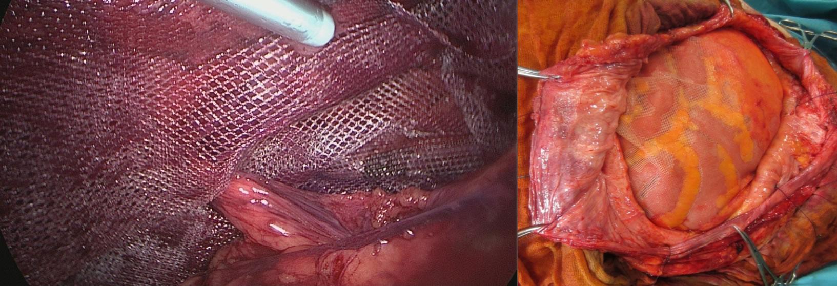 operacion de hernia del ombligo