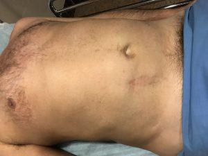 Que medico opera una hernia umbilical